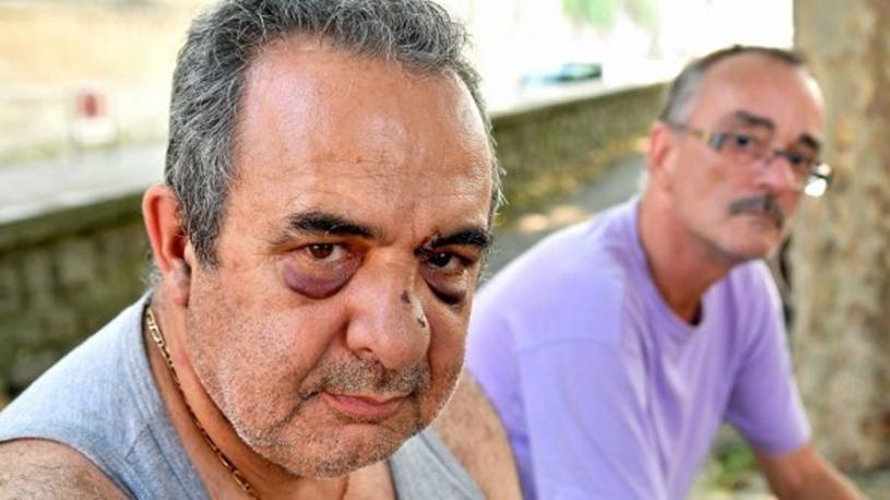 Gard : l'homophobie, motif d'une violente agression à Pont-Saint-Esprit ?